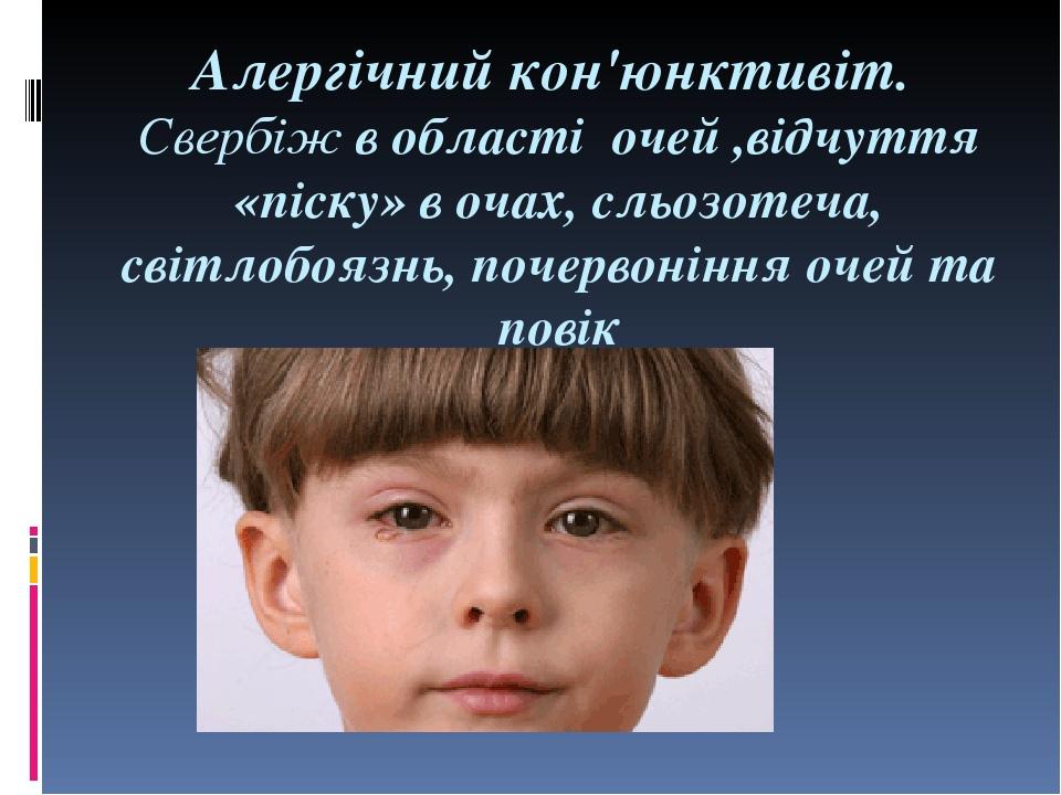 Алергічний кон'юнктивіт. Свербіж в області очей ,відчуття «піску» в очах, сльозотеча, світлобоязнь, почервоніння очей та повік