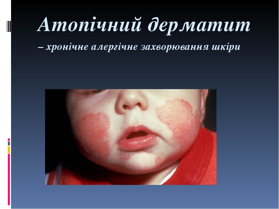 Атопічний дерматит – хронічне алергічне захворювання шкіри