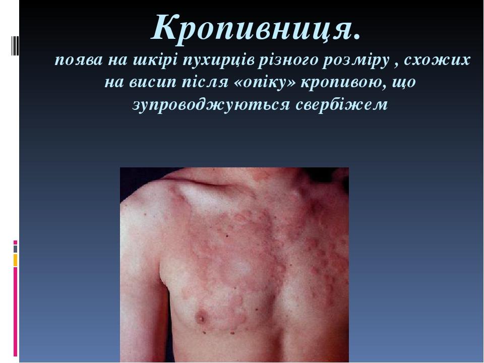 Кропивниця. поява на шкірі пухирців різного розміру , схожих на висип після «опіку» кропивою, що зупроводжуються свербіжем