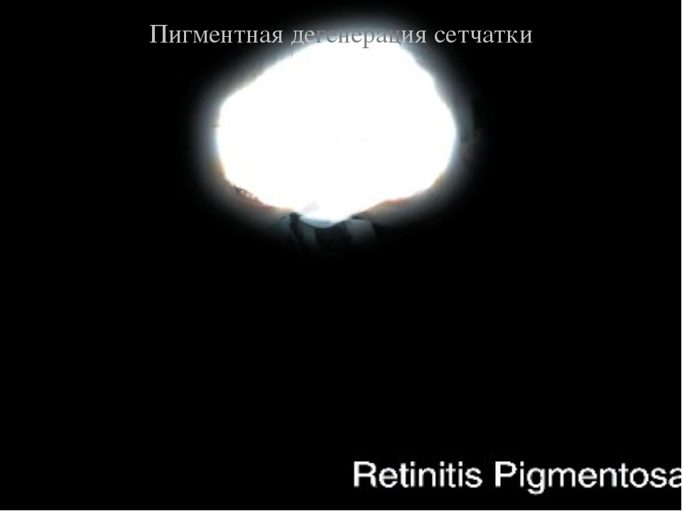 Пигментная дегенерация сетчатки