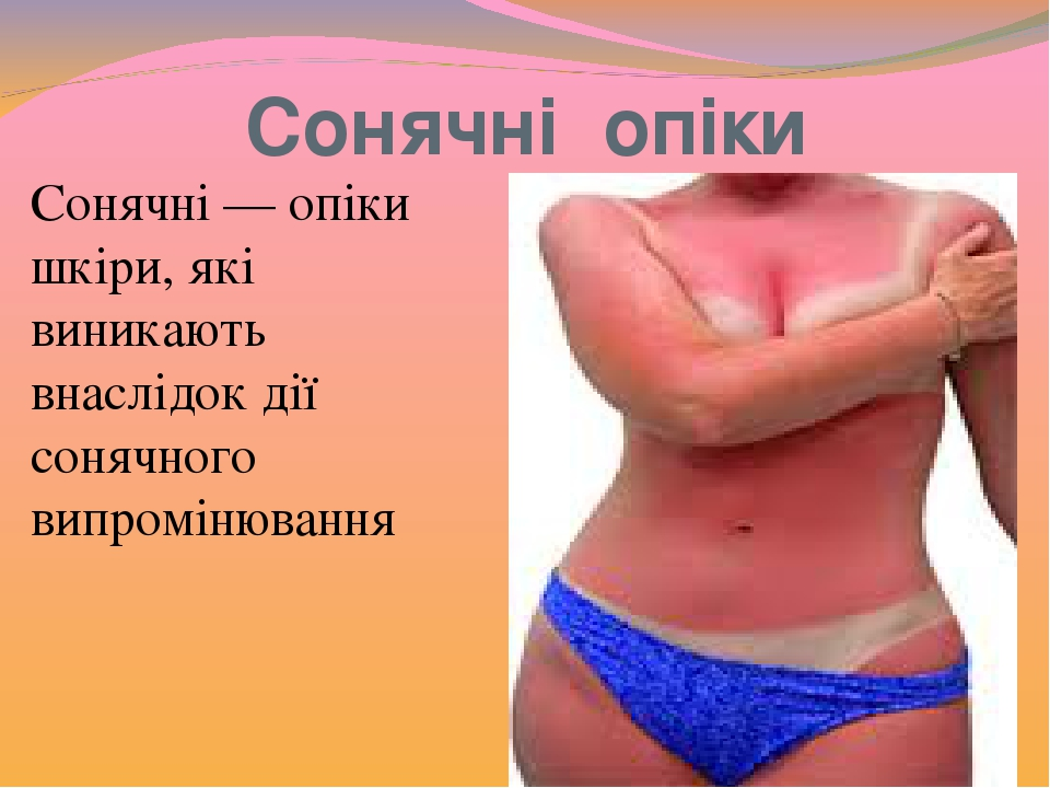 Сонячні опіки Сонячні — опіки шкіри, які виникають внаслідок дії сонячного випромінювання