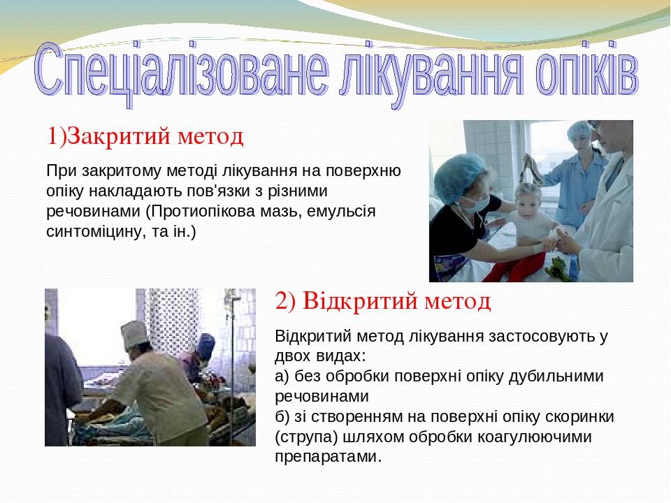 1)Закритий метод При закритому методі лікування на поверхню опіку накладають пов'язки з різними речовинами (Протиопікова мазь, емульсія синтоміцину...