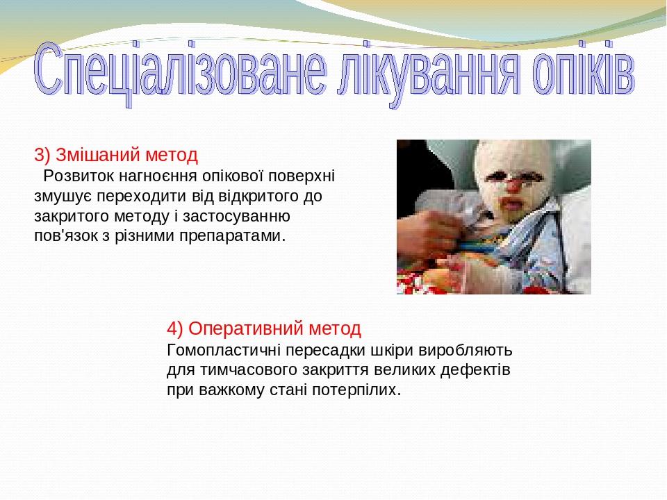 4) Оперативний метод Гомопластичні пересадки шкіри виробляють для тимчасового закриття великих дефектів при важкому стані потерпілих. 3) Змішаний м...