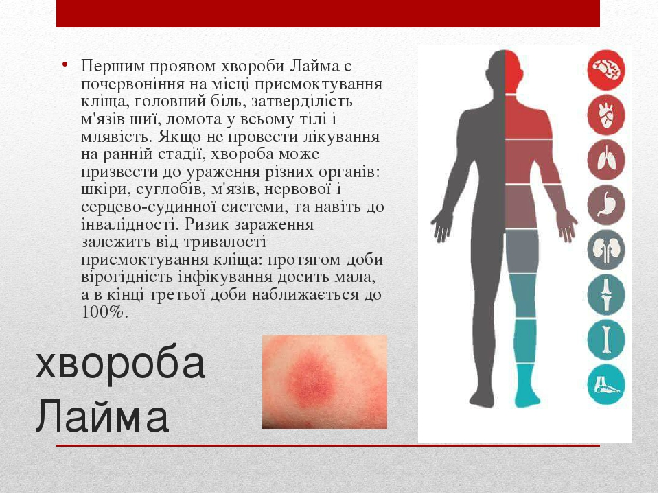 хвороба Лайма Першим проявом хвороби Лайма є почервоніння на місці присмоктування кліща, головний біль, затверділість м'язів шиї, ломота у всьому т...
