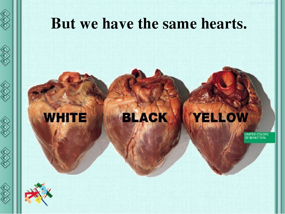 But we have the same hearts.