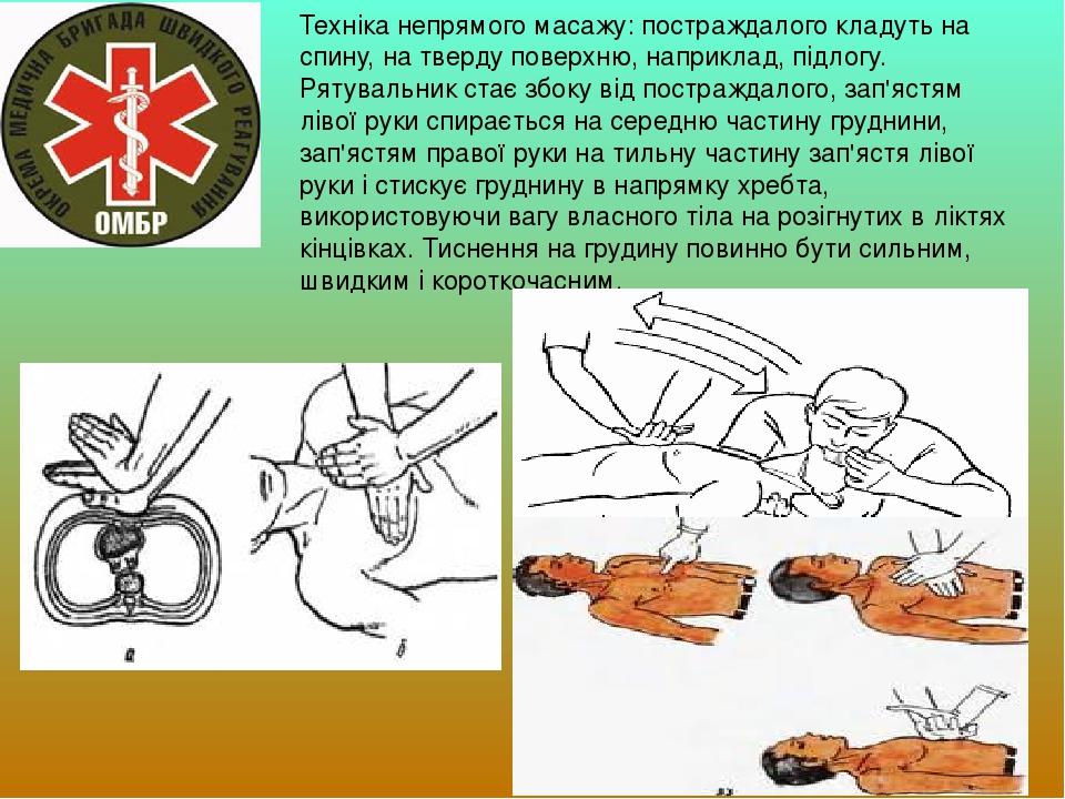 Техніка непрямого масажу: постраждалого кладуть на спину, на тверду поверхню, наприклад, підлогу. Рятувальник стає збоку від постраждалого, зап'яст...