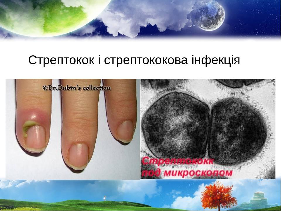 Стрептокок і стрептококова інфекція