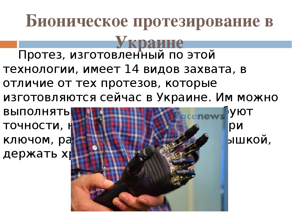 Бионическое протезирование в Украине Протез, изготовленный по этой технологии, имеет 14 видов захвата, в отличие от тех протезов, которые изготовля...