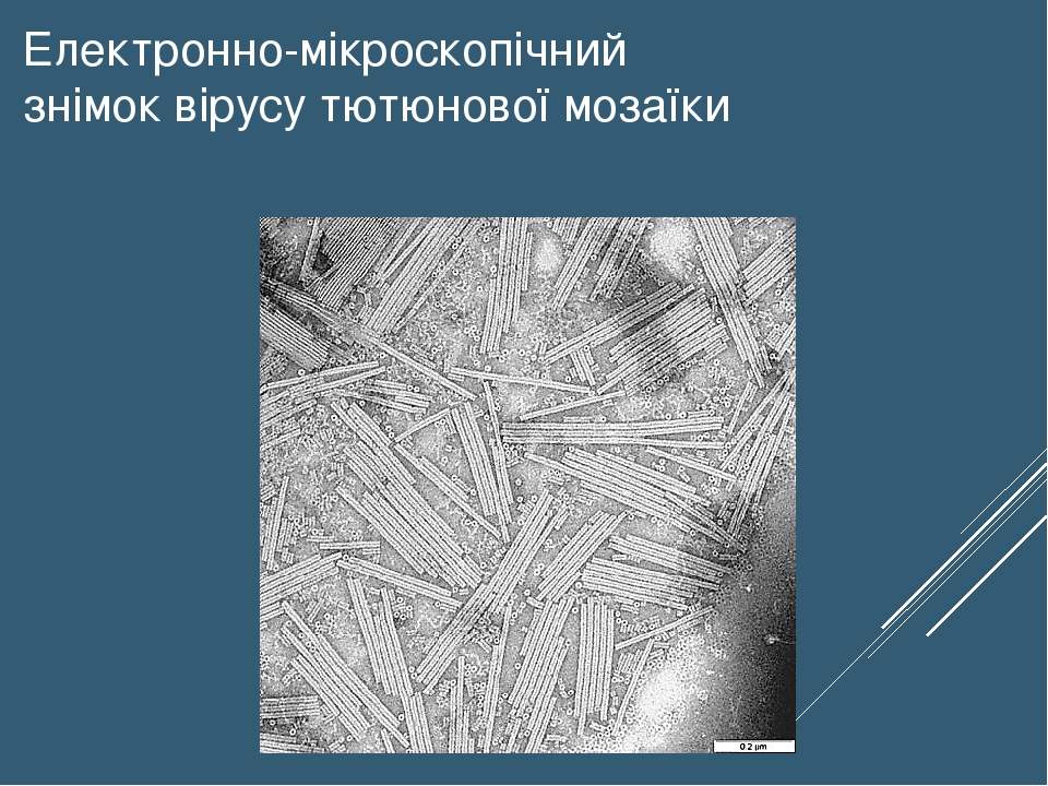 Електронно-мікроскопічний знімок вірусу тютюнової мозаїки